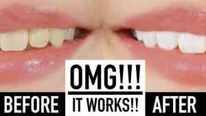 Whiten your teeth instantly 2