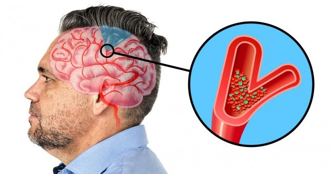 6 Warning Signs Of the Upcoming Stroke In Your Brain 2