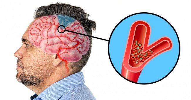 6 Symptoms of upcoming brain Stroke