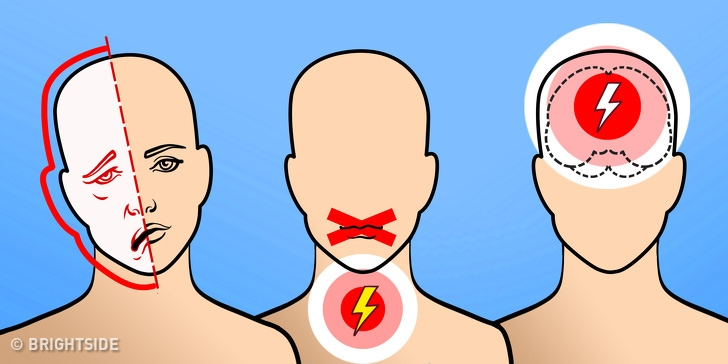 6 Warning Signs Of the Upcoming Stroke In Your Brain 1