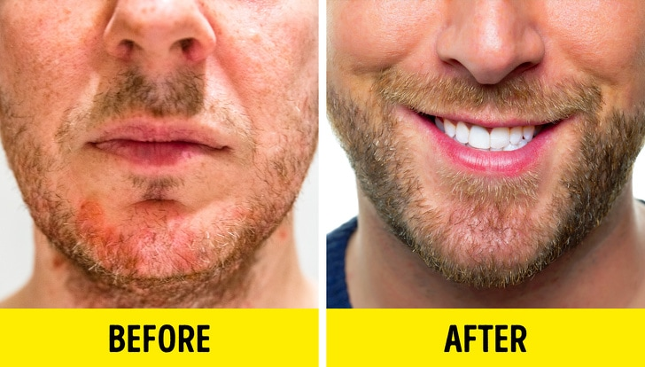 8 Best Methods To Grow Beard Even If You Think That You Cannot 3