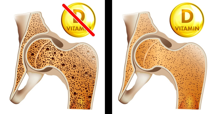 7 Best Signs That Prove Your Body Needs Vitamin Desperately 3