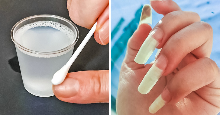 8 Best Natural Ways To Repair Damaged And Weal Nails 2