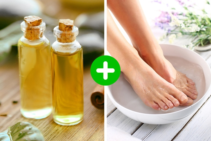 5 Best Ways To Heal The Cracked Skin 3