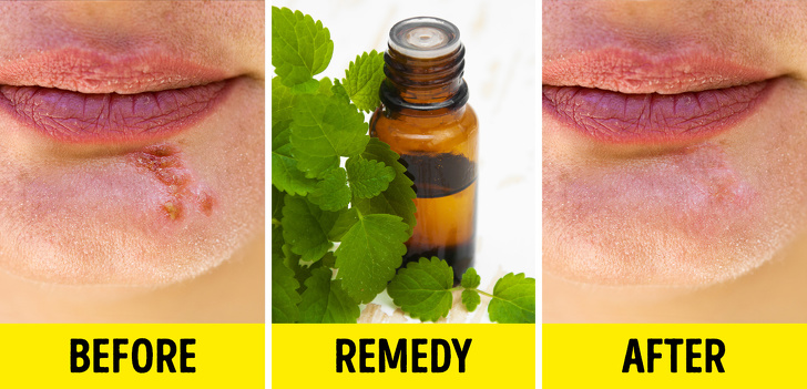 8 Simple Ways To Get Rid Of Cold Sores 3