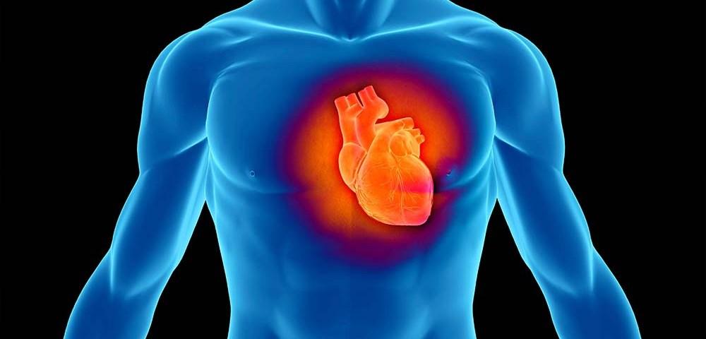 Инфаркт миокарда: что это, где, когда и как помочь?