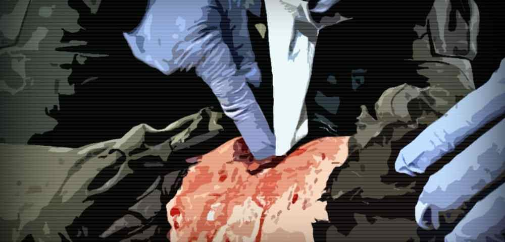 Местные гемостатические средства (гемостатики) для остановки кровотечения
