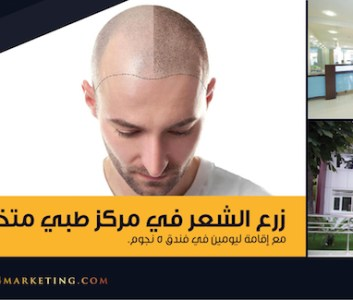 شركة فينكس تطلق منتج زراعة الشعر