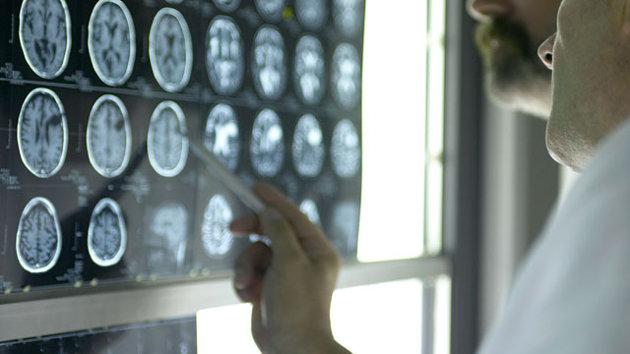 Studying_Brain.jpg