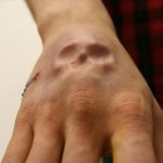 implant-main-silicone-steve-haworth