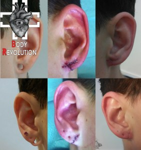 reconstruction-lobe-ear-fix-repair