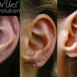 reconstruction-lobe-ear-repair