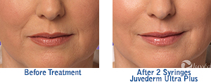 Juvederm Ultra Plus before and after