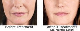 Sculptra Aesthetic before and after