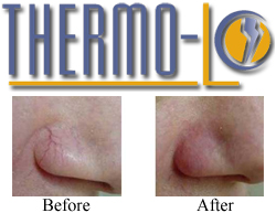 thermo-lo before and after