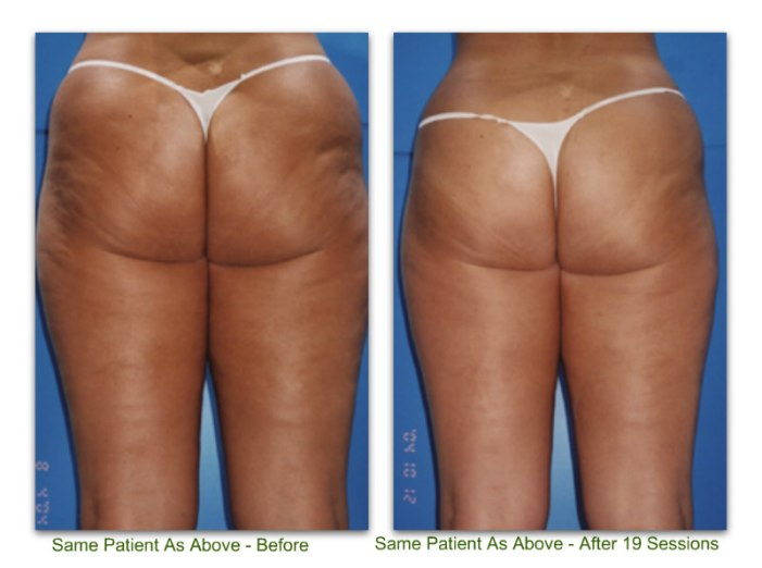 endermologie 4 before and after 19 sessions