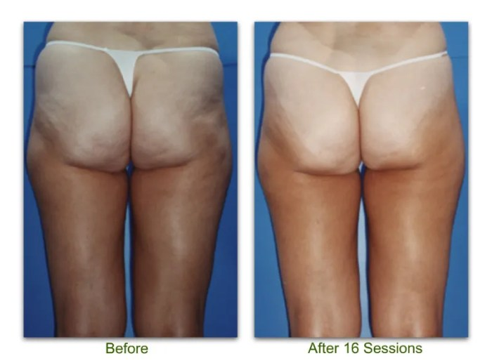 endermologie 7 before and after 16 sessions