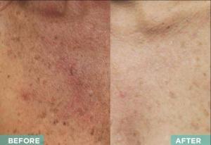 Vi-Peelchest-VIPeel-Skinceuticals-Body BeneFits-Best of the Best-Best Medspa-Best Facials-Best Botox-Best Laser Hair Removal-Best Staff