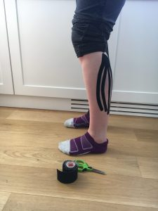All about Kinesiotape