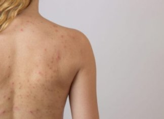 home remedies to get rid of back acne