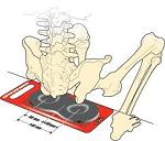 sit-bones