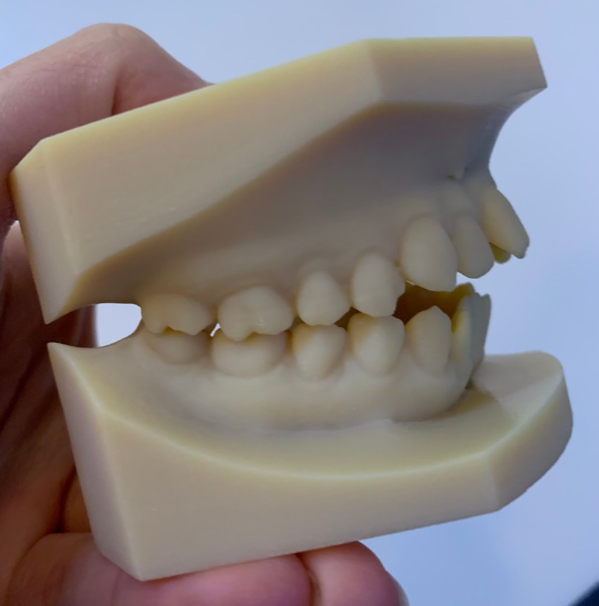 Upper and lower jaw models held together approximately the way they fit in my mouth. Side view.