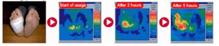 thermographic circulation image