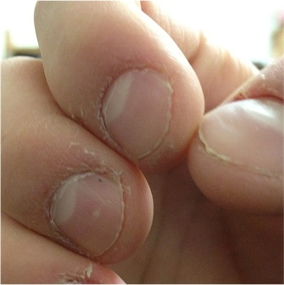 800px Nail and cuticle bitting