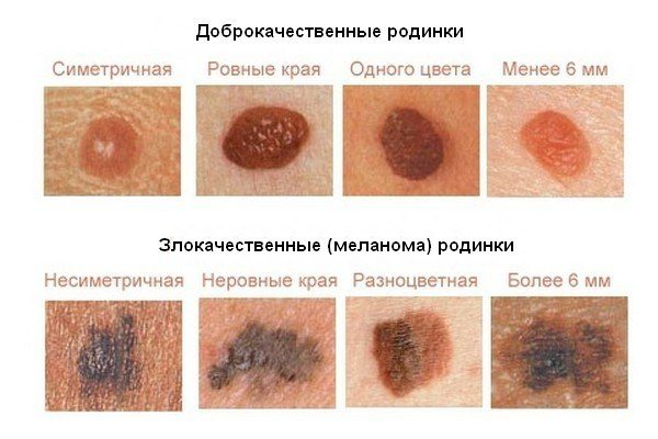 care sunt petele de la varicoză în sevastopol tratamentul varicozei