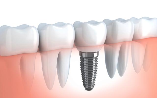 España a la cabeza de Europa en implantes dentales