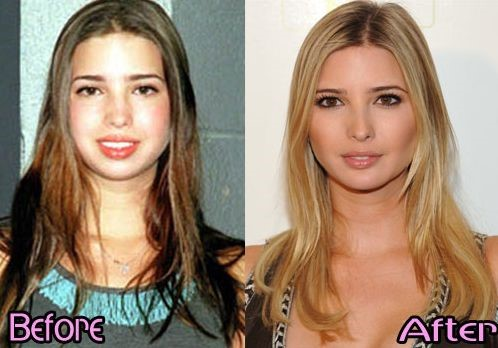 ivanka-trump-before-and-after-plastic-surgery-2