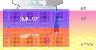 ミラドライの仕組み3の図