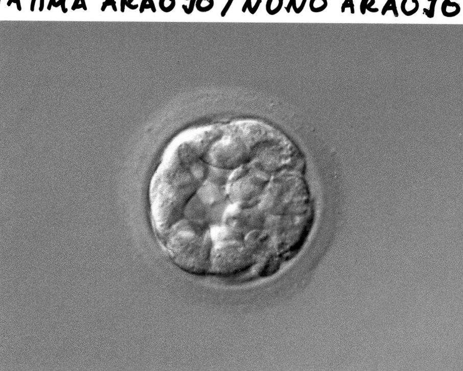 embrião1