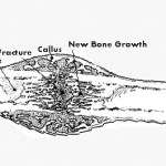 Fracture Healing – How Does it Occur