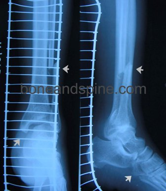 Xray of Fracture Fibula With Subluxation of Ankle