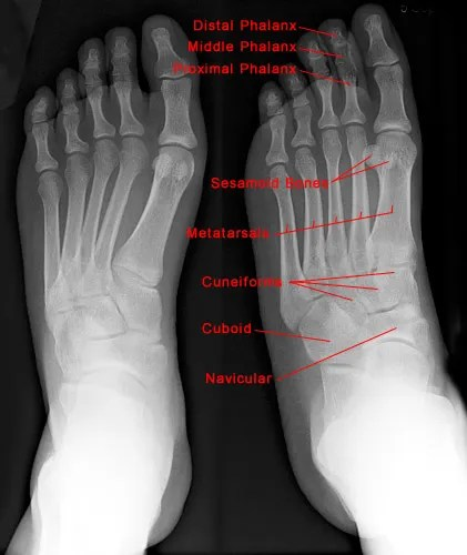Foot Xray Showing Marked Bones andFoot Regions