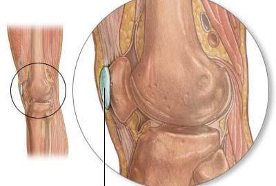 Knee bursae anatomy and significance bone and spine pes anserine bursa ccuart Gallery
