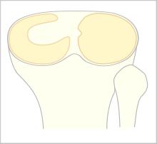 discoid-meniscus
