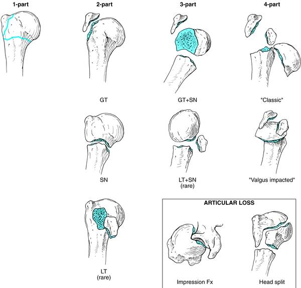 Neer Classification of Proximal Humerus Fracture