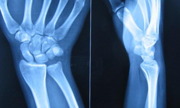 Radiograph of normal wrist