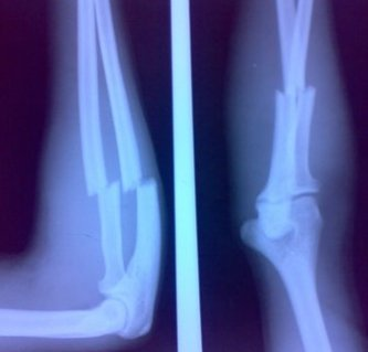 Fractures of Proximal Thirds Of Radius and Ulna