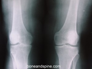 OA bilateral knee