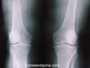 OA bilateral knee