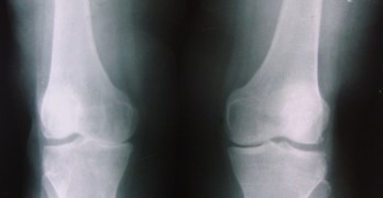 Osteoarthritis Symptoms, Diagnosis & Treatment