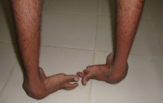 Untreated Congenital Talipes Equino varus On Both Feet