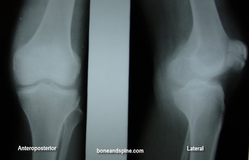 Ap and Lateral View of Undisplaced Fracture of Patella