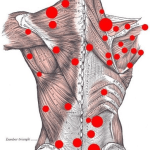 Trigger Point and its Treatment
