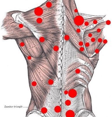 Trigger Point Causes Types And Treatment Bone And Spine