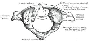 atlas-vertebra