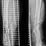 Radiographs of Tibia Fibula Fracture